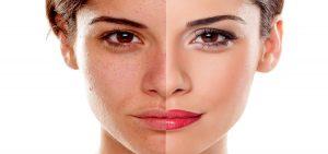 Reason for Skin Darkening
